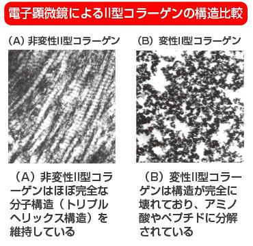 電子顕微鏡によるII型コラーゲンの構造比較