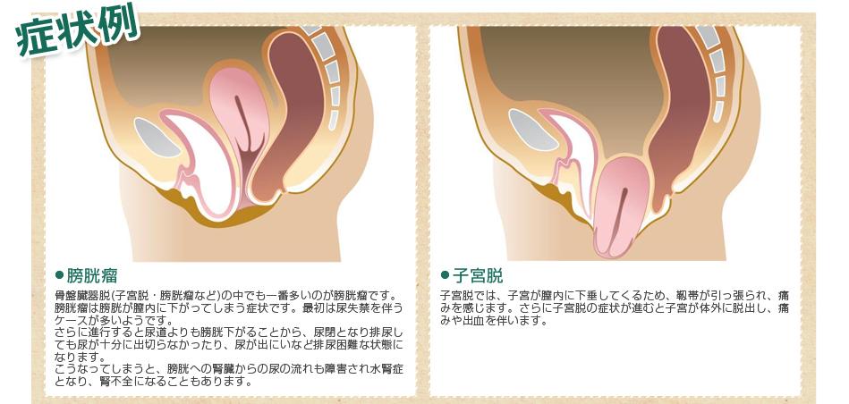 症状例 子宮脱、膀胱瘤