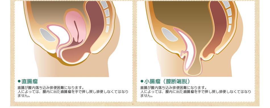 直腸瘤、小腸瘤