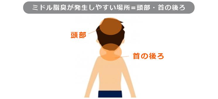 ミドル脂臭が発生しやすい場所=頭部・首の後ろ